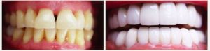 artistic-restoration-of-teeth